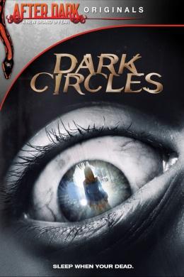 Темные круги